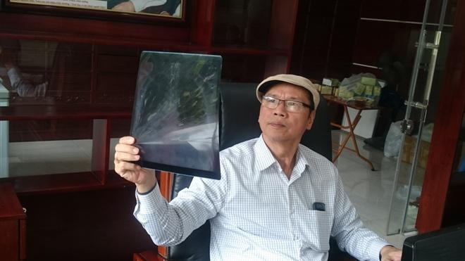 luong y Nguyen Huu Toan anh 1