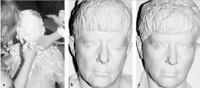Lam dep mat, coi chung meo mat! hinh anh 2 Hình a: Tạo mẫu khuôn mặt bệnh nhân bằng thạch cao để có được minh chứng trong không gian 3 chiều về những gì làm được; Hình b: Trước phẫu thuật; Hình c: Sau phẫu thuật.