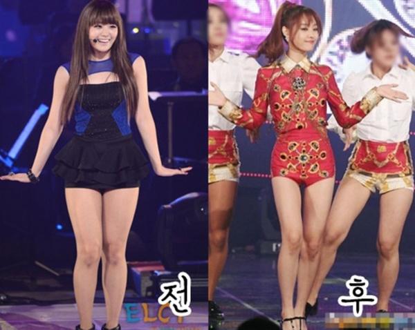 Nhung kieu nu Han 'lot xac' sau khi giam can hinh anh 4 Thời điểm Song Ji Eun của Secret xuống cân, chỉ còn 45kg, cô thay đổi khá nhiều từ gương mặt cho đến vóc dáng. Nữ ca sĩ từng giảm 10kg chỉ trong 2 tuần lễ sau khi đọc những lời bình luận ác ý của cư dân mạng về thân hình cô.