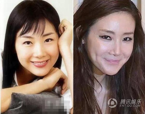 My nhan Han mat cung do, bien dang vi tham my hinh anh 2 Theo thời gian, người đẹp một thời của Hàn Quốc liên tục bị nghi vấn thẩm mỹ, tiêm botox giữ nét thanh xuân.