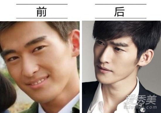Sự nghiệp và ngoại hình của Trương Hàn đều thay đổi theo hướng tích cực theo thời gian. Khó có thể nhận ra đây từng là diễn viên bị chê xấu khi được nhận vai chính trong Vườn sao băng. Anh khiến nhiều người nghi ngờ việc chỉnh mũi.