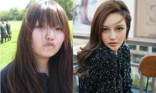 Châu Dương Thanh trước và sau khi thẩm mỹ.