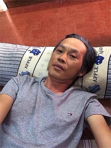 Hoai Linh nhan mat tren truyen hinh khien khan gia ngan ngam hinh anh 18