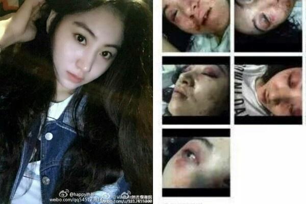 2015 - Nhung bi mat showbiz Hoa ngu bi phanh phui hinh anh 4 Nữ ca sĩ Tiểu Hy bị đánh đập đến biến dạng mặt chỉ vì cãi lời ông chủ. Sự việc xảy ra vào giữa năm 2015.