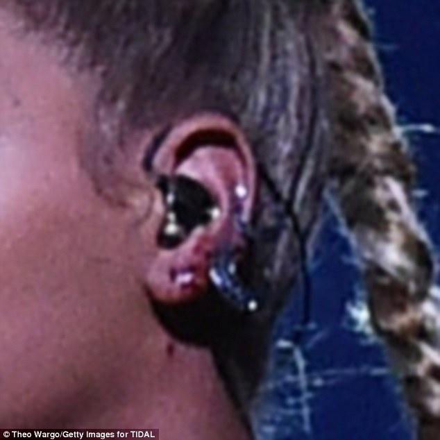 Beyonce bieu dien voi mot ben tai chay mau anh 4