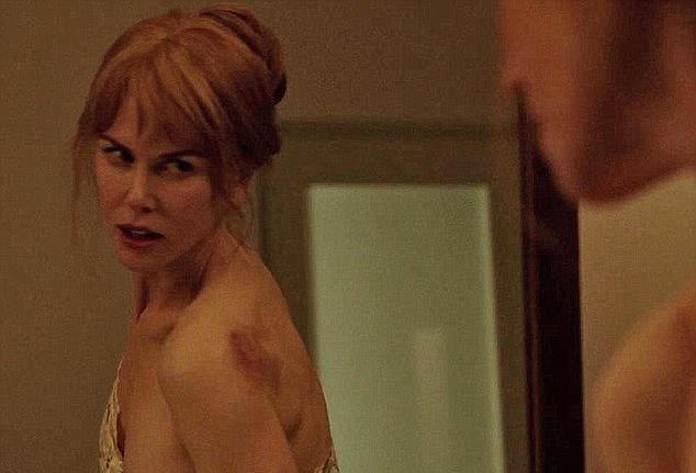 Nicole Kidman phai uong thuoc giam dau vi canh nong bao hanh hinh anh 1