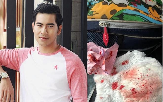 Đồng nghiệp lo lắng khi diễn viên Thanh Bình chảy máu mũi bất thường