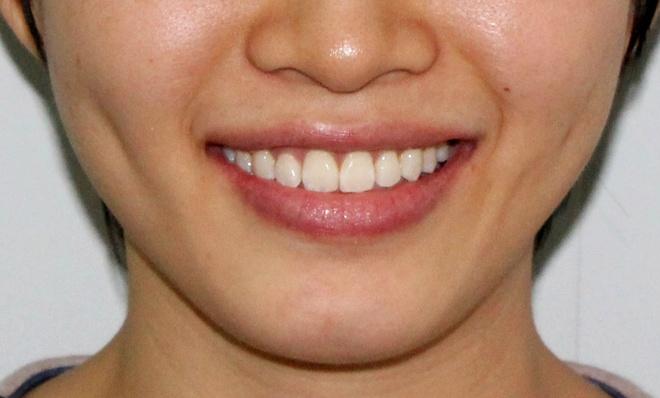 Vi sao rang moc chen chuc? hinh anh 5 Kết quả sau khi niềng răng.
