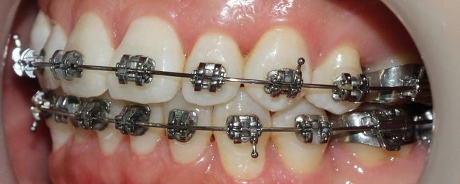 Vi sao rang moc chen chuc? hinh anh 4 Đang điều trị bằng niềng răng.