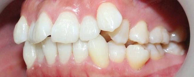 Kết quả hình ảnh cho răng mọc chen chúc