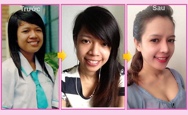 4 ca phau thuat doi doi cua ban tre Viet hinh anh 1 Nguyễn Thị Minh Yến xinh như hot girl sau phẫu thuật thẩm mỹ.