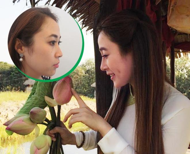 Tham my vien Han Quoc JW: Dia chi nang mui dep uy tin hinh anh