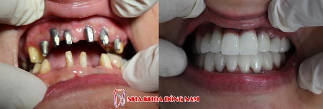 Bệnh nhân phục hình 2 hàm răng giả cố định.