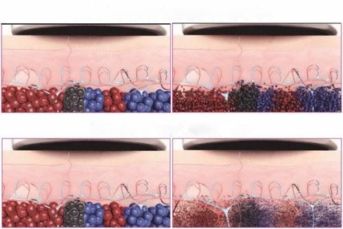 Laser Pico (PicoSure và PicoWay) phân hủy sắc tố thành những mảnh cực nhỏ (nhỏ hơn laser thông thường) nên giúp cơ thể đào thải nhanh chóng và dễ dàng hơn.