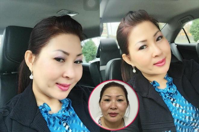 Benh vien tham my Ngoc Phu - dia chi lam dep uy tin hinh anh 3 Doanh nhân Thanh Thúy đang sống tại Mỹ cảm thấy tự tin hơn khi gặp khách hàng và công việc kinh doanh ngày càng phát triển sau khi thẩm mỹ.