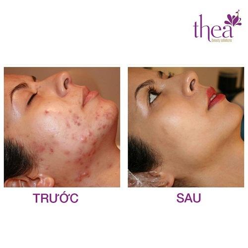 Da dep rang ngoi voi lieu phap moi tai Thea Beauty Solutions hinh anh 3