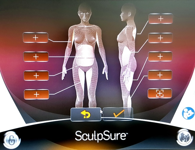 Laser SculpSure - cong nghe giam mo khong can phau thuat hinh anh 1