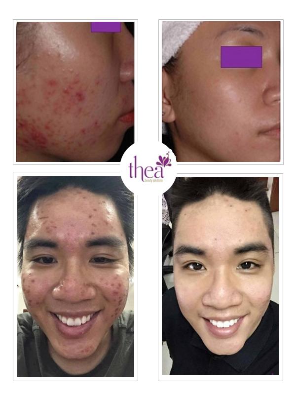 Thea Beauty Solutions ra mat goi cham soc da uu dai hinh anh 4