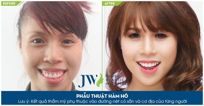 Phau thuat hai ham chinh ho mom toan dien tai JW hinh anh 8