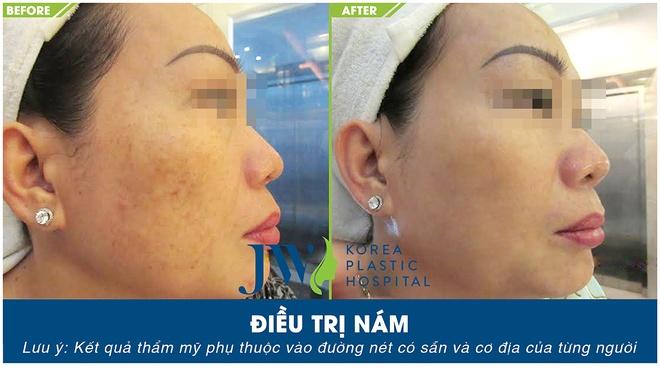 Skincare JW anh 1