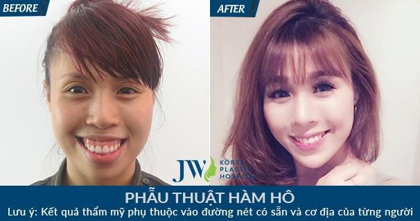 Benh vien Tham my JW Han Quoc,  khuyen mai anh 3