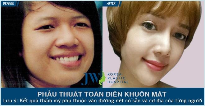 Benh vien Tham my JW Han Quoc,  khuyen mai anh 5