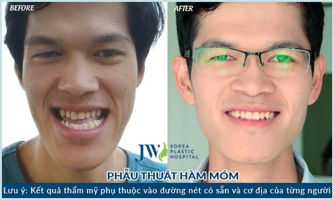 Benh vien tham my JW Han Quoc chi nhanh Viet Nam anh 5