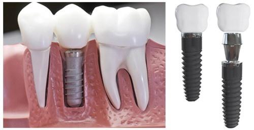 Implant - giai phap trong rang gia co dinh vinh vien hinh anh 1