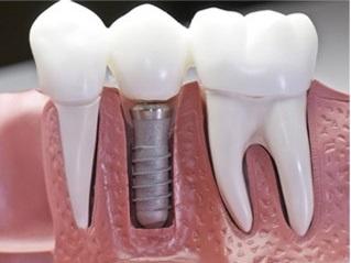 Implant - giai phap trong rang gia co dinh vinh vien hinh anh
