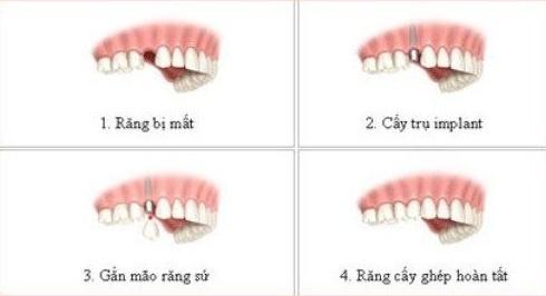 Implant - giai phap trong rang gia co dinh vinh vien hinh anh 2