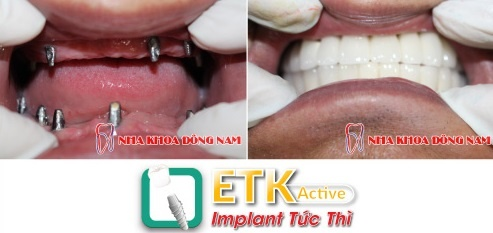 Rut ngan thoi gian trong rang gia bang Implant ETK Active moi hinh anh 3