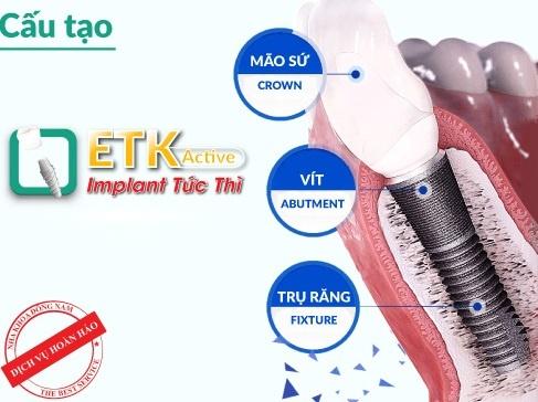 Rut ngan thoi gian trong rang gia bang Implant ETK Active moi hinh anh 1