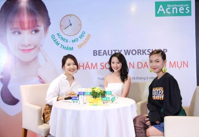 Bi quyet tri tan goc seo, vet them sau mun cua beauty blogger Viet hinh anh 1