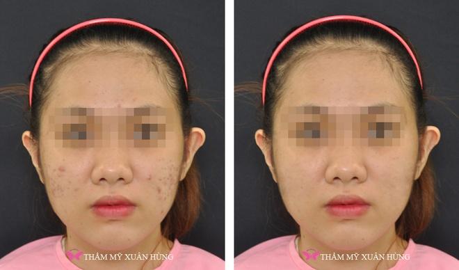 Tri mun khong dau bang cong nghe laser Q-Switched hinh anh 5