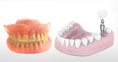 giai - Bác sĩ nha khoa giải đáp thắc mắc về trồng răng Implant NK1