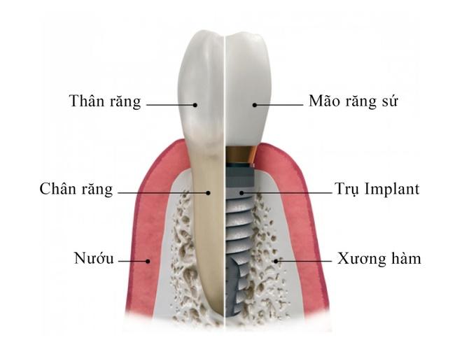 Chi phi trong rang Implant the nao la hop ly? hinh anh 4
