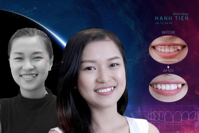 San Dentist gioi thieu phuong phap dieu tri ho loi chi voi 5 buoc hinh anh 1