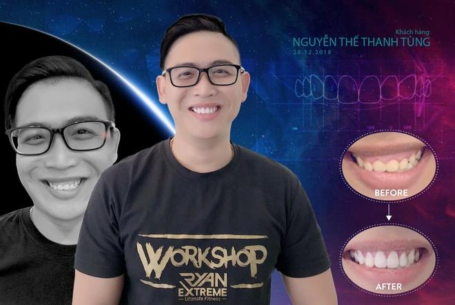 San Dentist gioi thieu phuong phap dieu tri ho loi chi voi 5 buoc hinh anh 2
