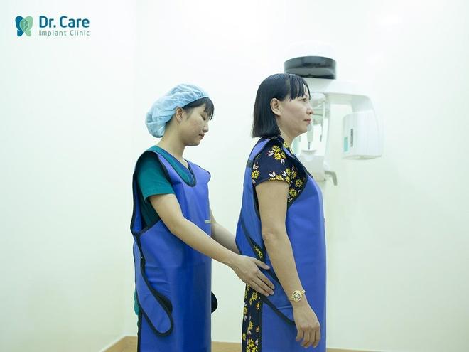 Nha khoa chuyen trong rang Implant cho nguoi trung nien hinh anh 2