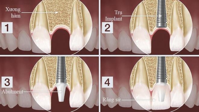 Nguoi mat mot rang nen trong Implant hay lam cau su? hinh anh 1