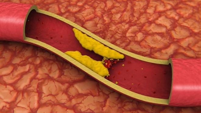 Không nên chủ quan trước biến chứng mỡ máu cao