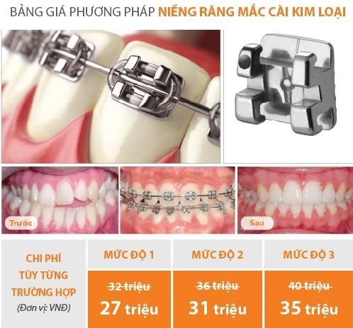 Up Dental anh 2