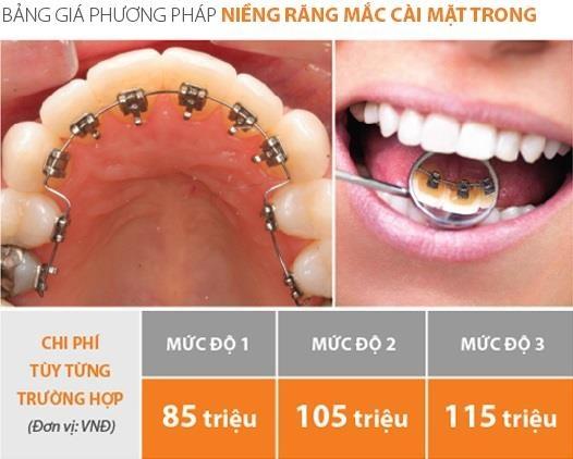 Up Dental anh 4