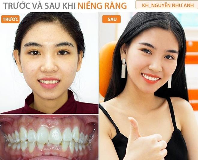 Up Dental anh 6