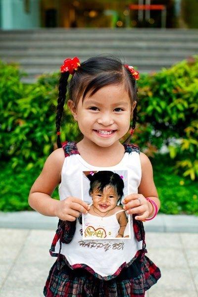 Aqua Việt Nam đem cơ hội phẫu thuật dị tật vùng hàm mặt cho trẻ em