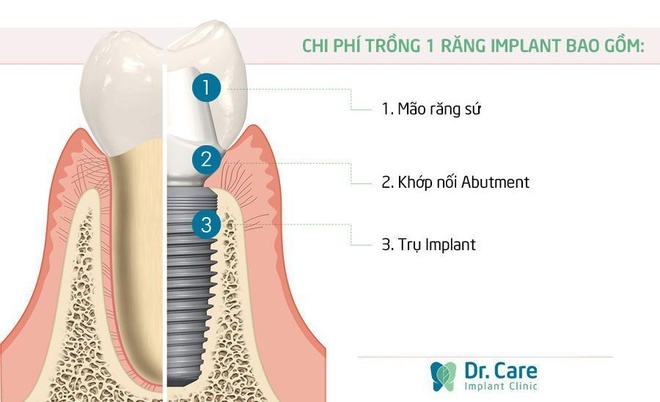 Viet kieu My ve nuoc trong rang Implant de tiet kiem chi phi hinh anh 1