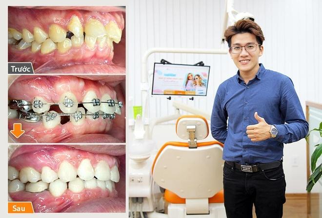 Trai nghiem nieng rang tai Up Dental cua chang trai 9X hinh anh 1