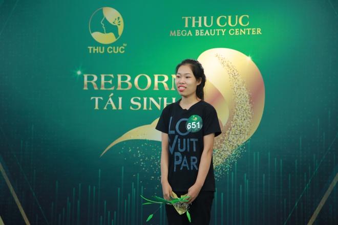 Tran Thanh, Minh Hang dong y tai tro 1 ty cho 9X phau thuat tham my hinh anh 1 reborn_truoc_1.JPG