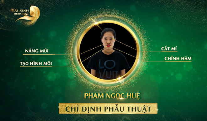 Tran Thanh, Minh Hang dong y tai tro 1 ty cho 9X phau thuat tham my hinh anh 4 reborn_truoc_4.png