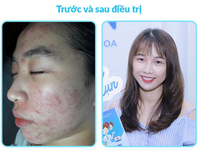 O2 Skin anh 3